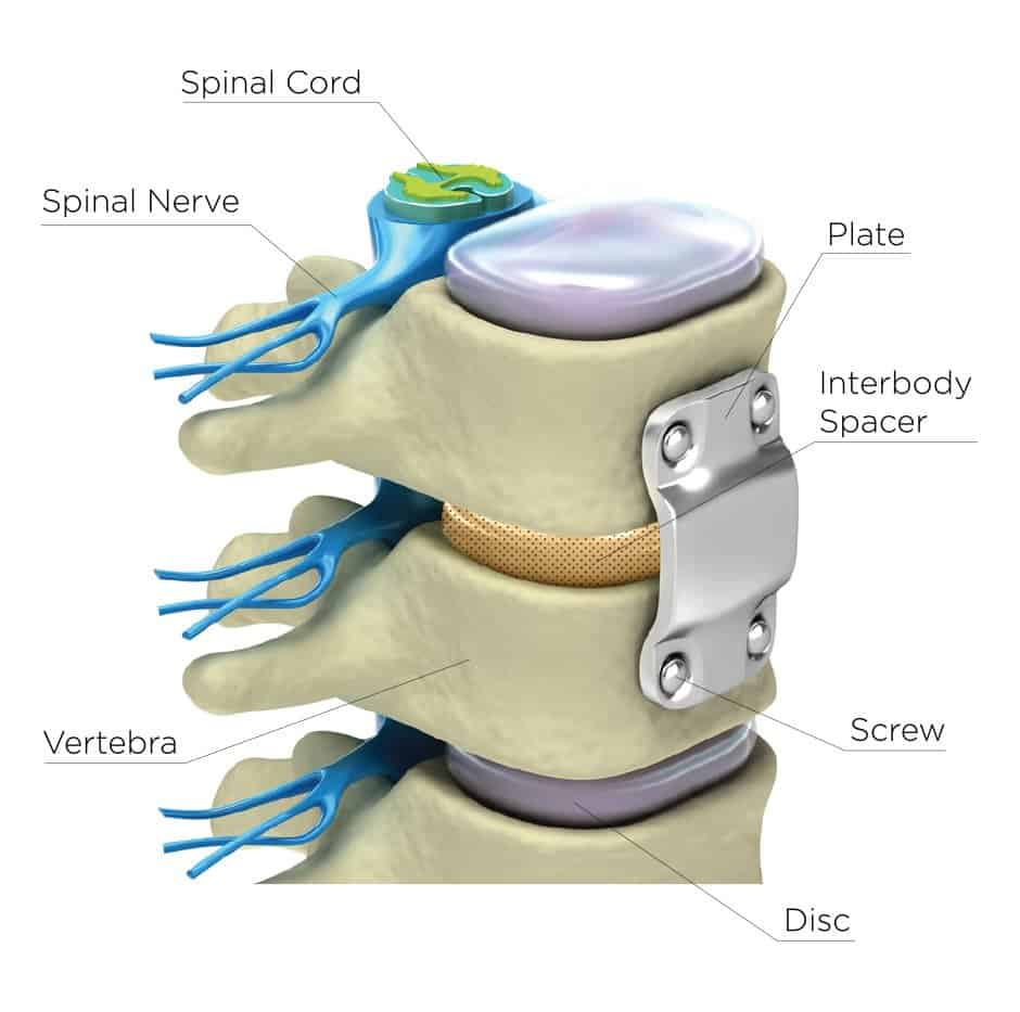 Graphic of: Spinal Cord, Spinal Nerve, Plate, Interbody Spacer, Screw, Disc