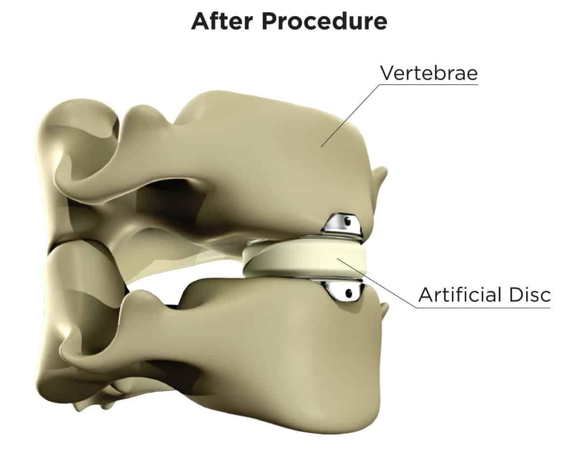 After Procedure: Vertebrae, Artificial Disc