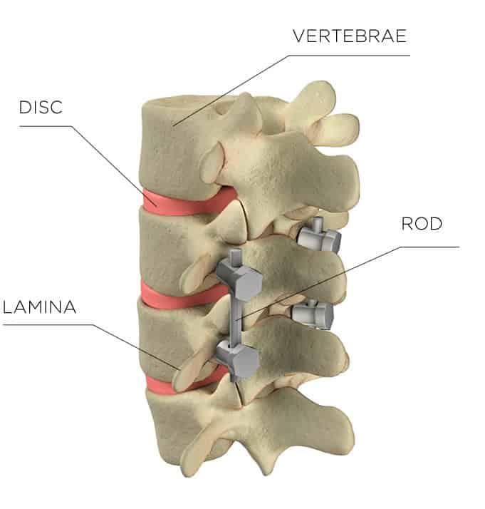 Graphic of: Vertebrae, Disc, Rod, Lamina