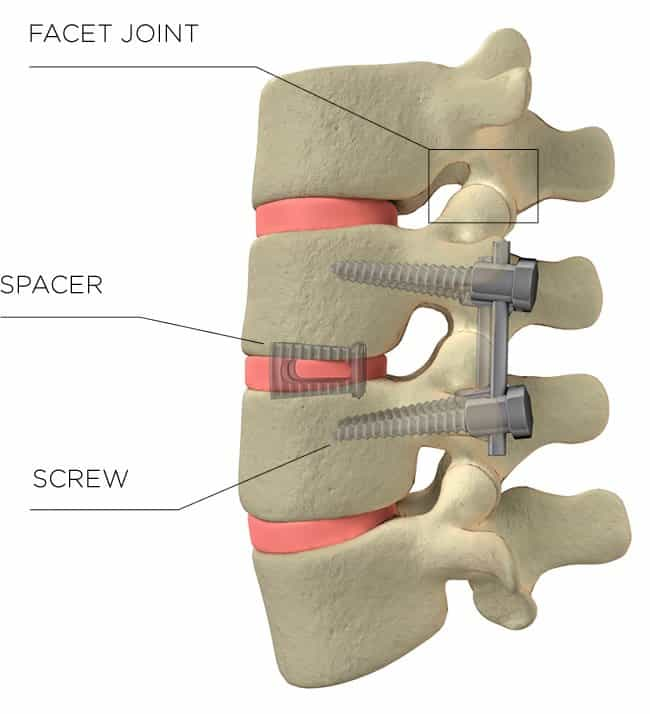 Graphic of: Facet Joint, Spacer, Screw