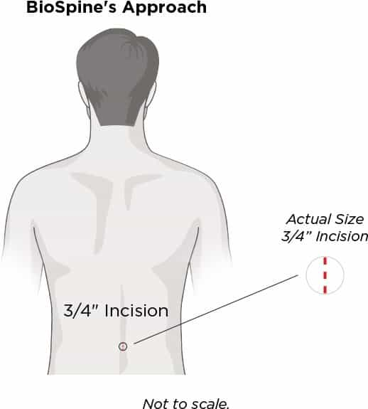 BioSpine's Approach : 3/4 inch incision