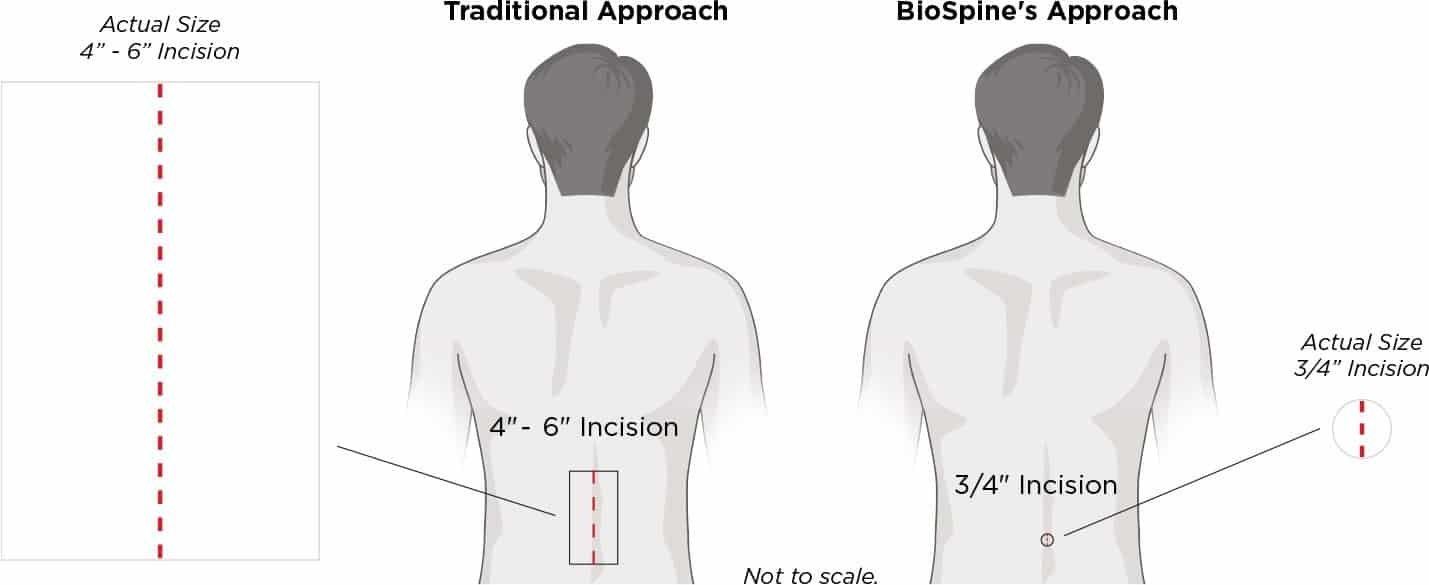 Traditional Approach : 4inch - 6inch incision BioSpine's Approach : 3/4 inch incision