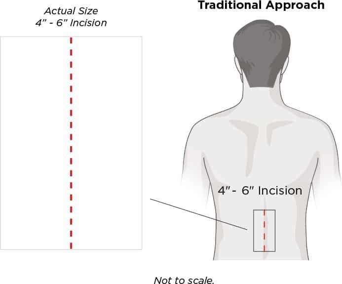 Traditional Approach : 4inch - 6inch incision