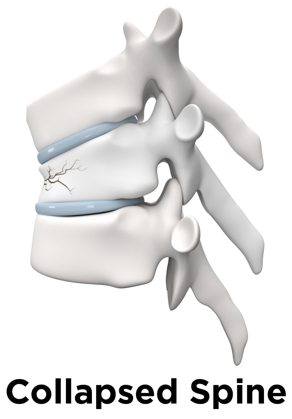 Collapsed Spine