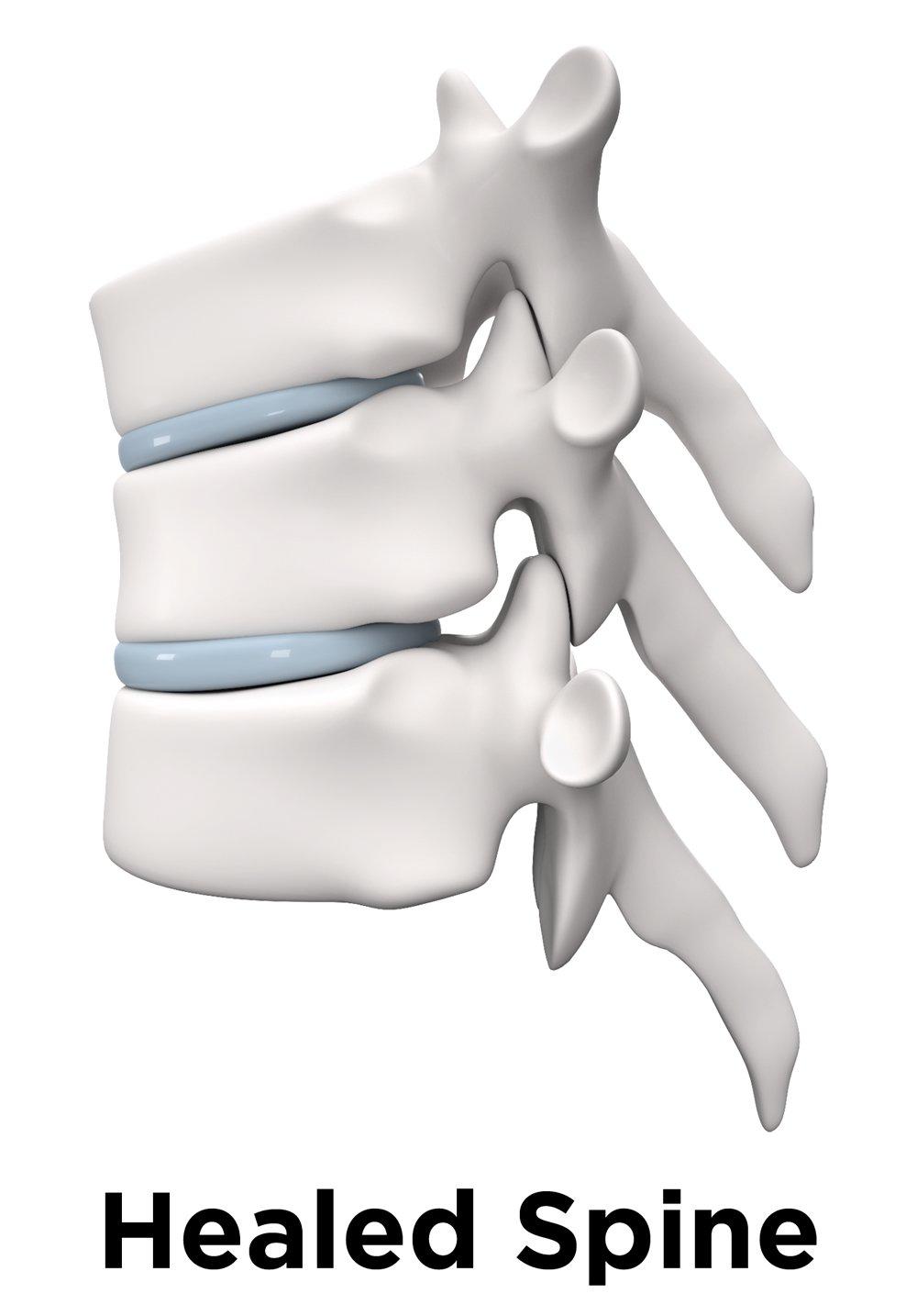 Healed Spine